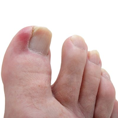 a healthy toenail has been damaged, and has become ingrown, infecting the toe and causing it to become septic